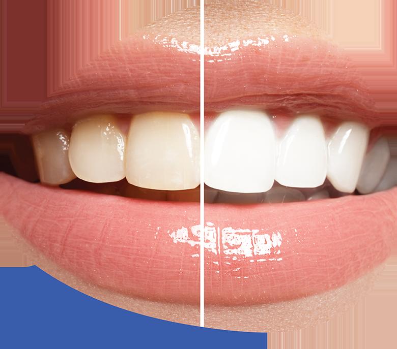 Teeth Whitening