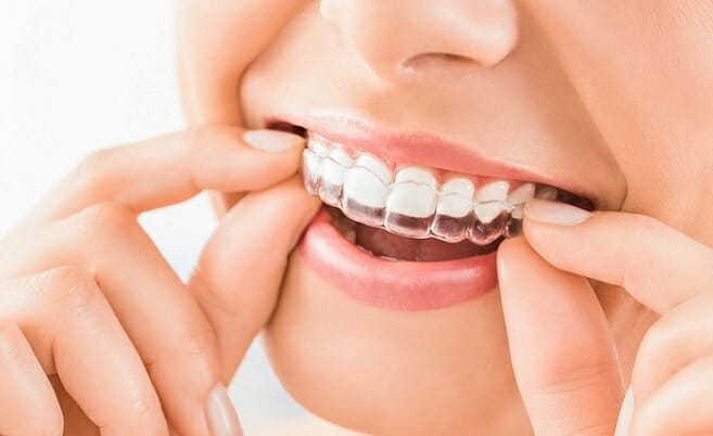 invisible teeth straightener