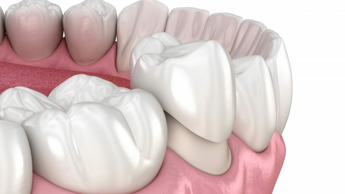 tooth cap material being placed on tooth
