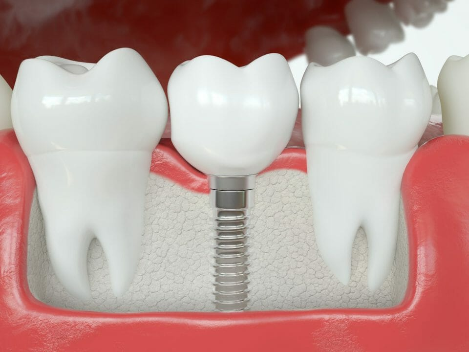 dental crown compared to a dental implant