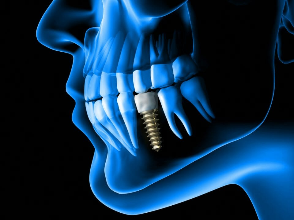 Animated X-Ray of Left Side of Jaw With Dental Implant